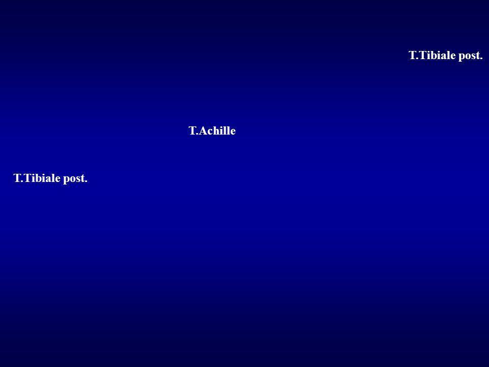 T.Tibiale post. T.Achille T.Tibiale post.