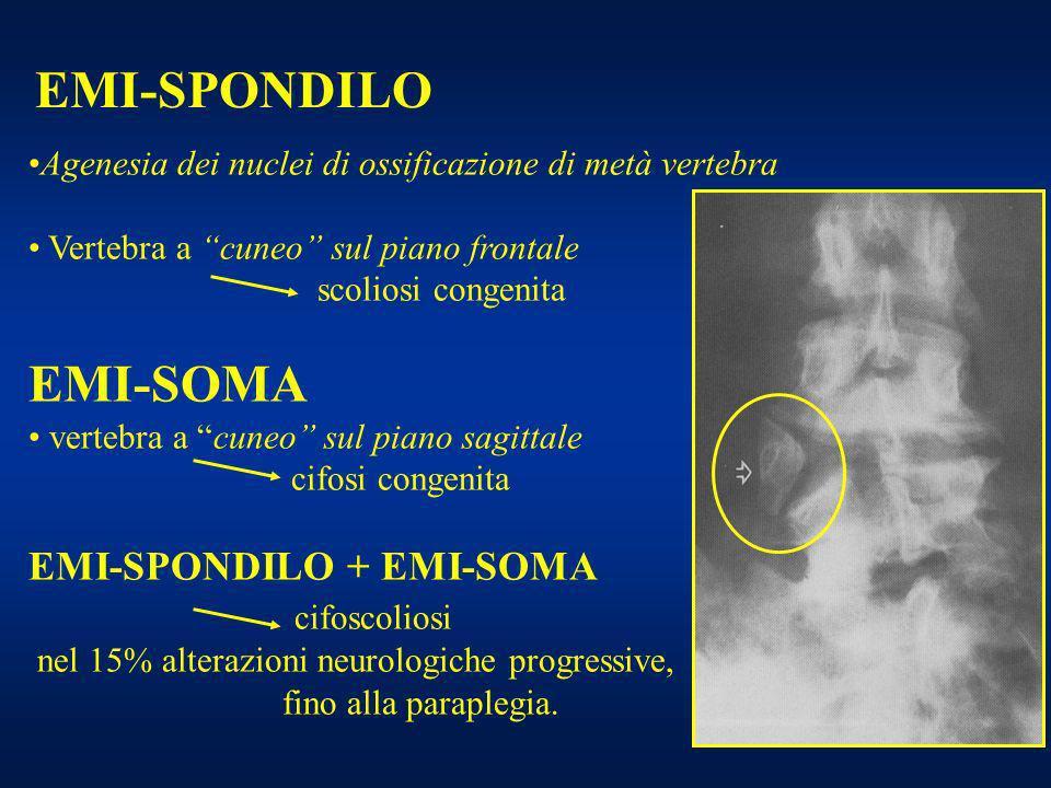 EMI-SOMA EMI-SPONDILO EMI-SPONDILO + EMI-SOMA cifoscoliosi
