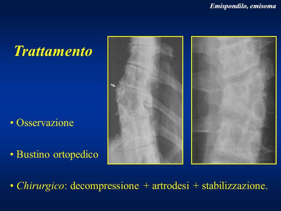 Trattamento Osservazione Bustino ortopedico