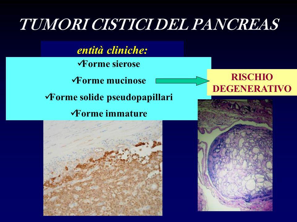 TUMORI CISTICI DEL PANCREAS Forme solide pseudopapillari