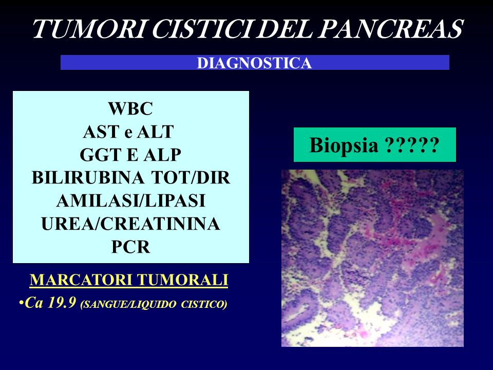 TUMORI CISTICI DEL PANCREAS