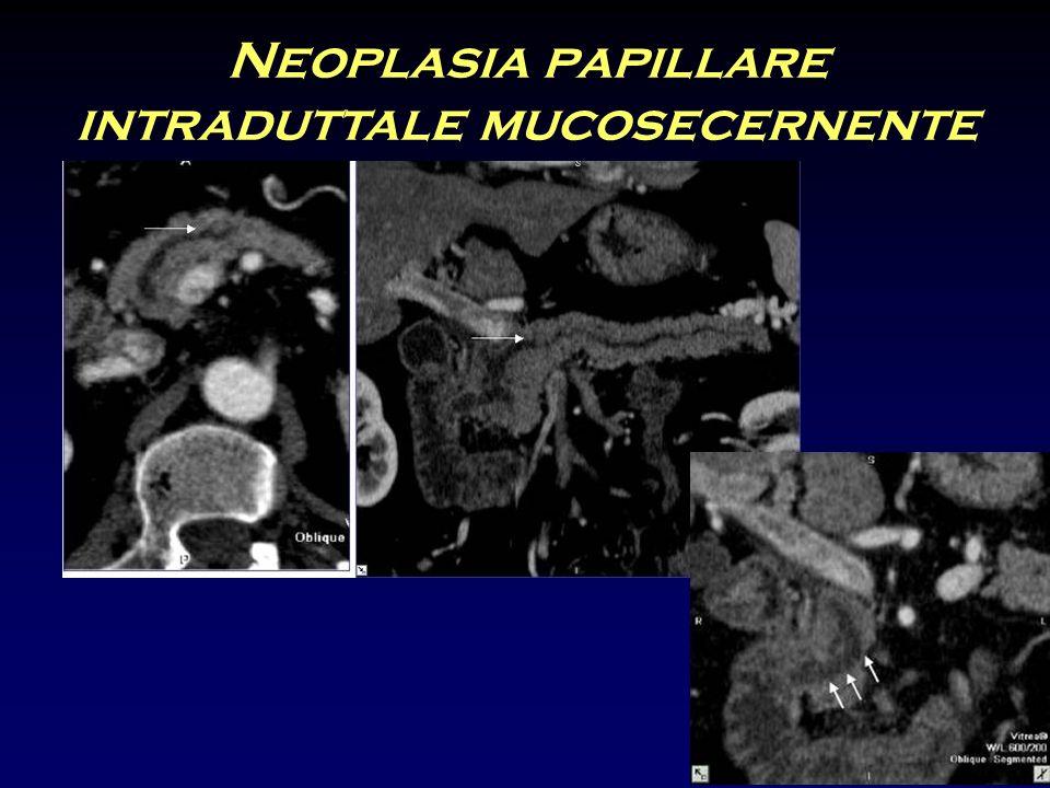 Neoplasia papillare intraduttale mucosecernente