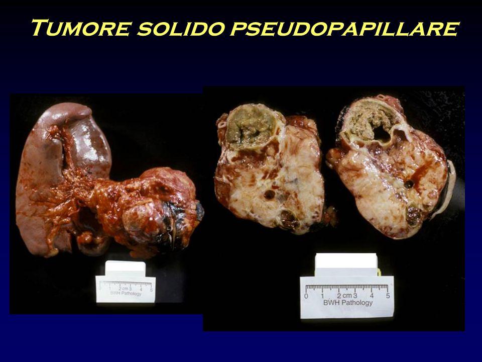 Tumore solido pseudopapillare