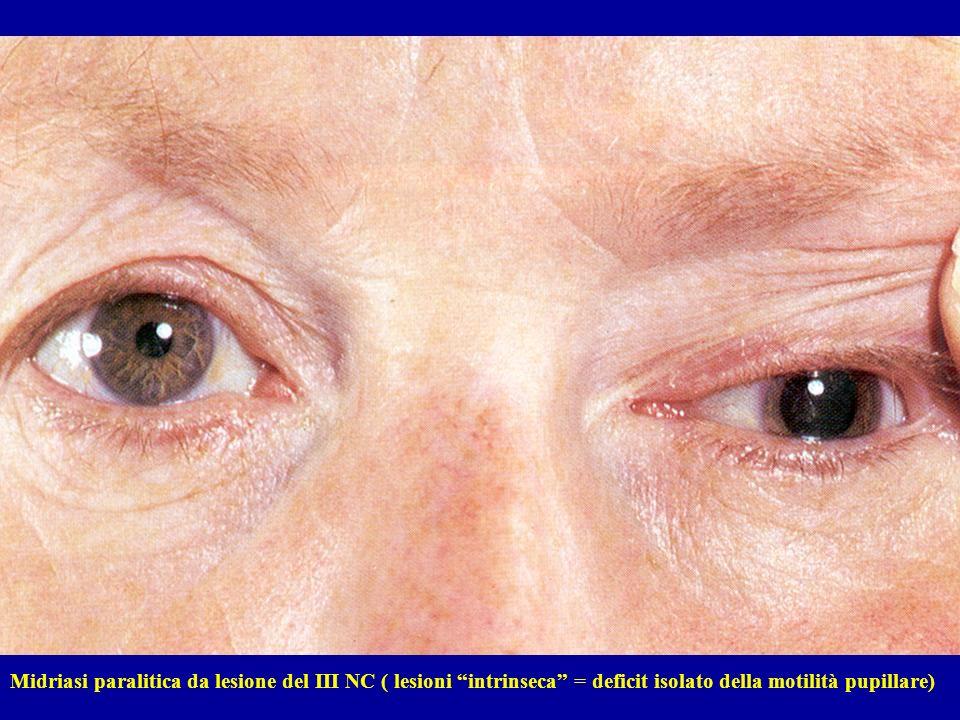 Midriasi paralitica da lesione del III NC ( lesioni intrinseca = deficit isolato della motilità pupillare)