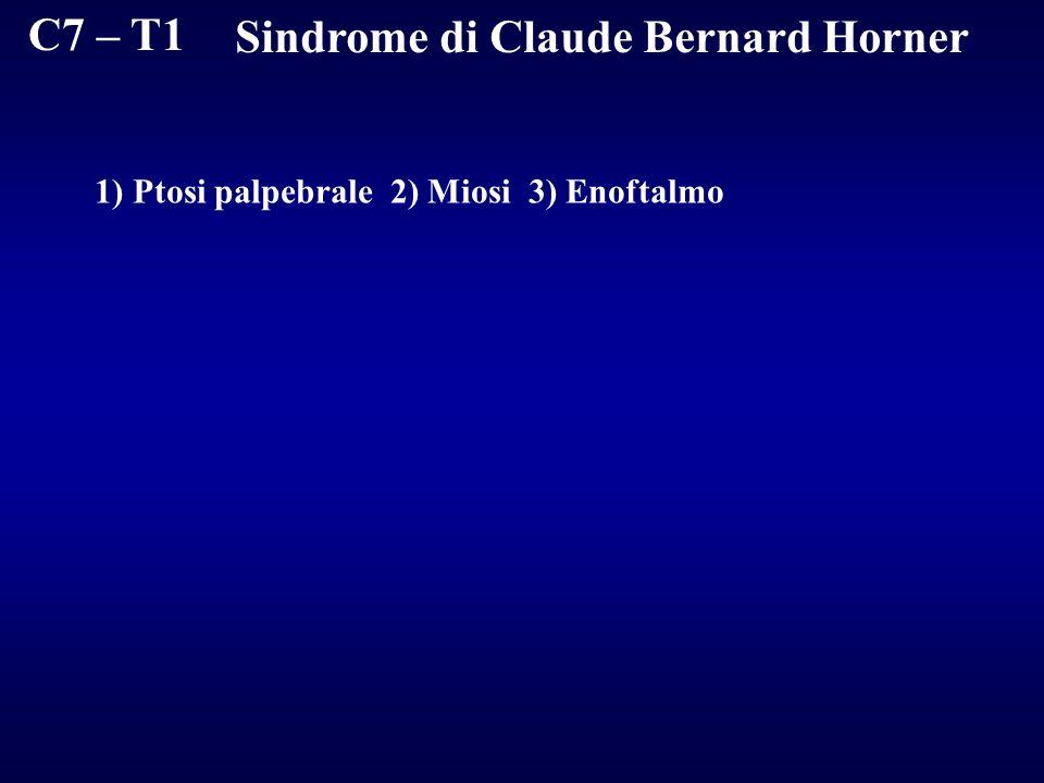Sindrome di Claude Bernard Horner
