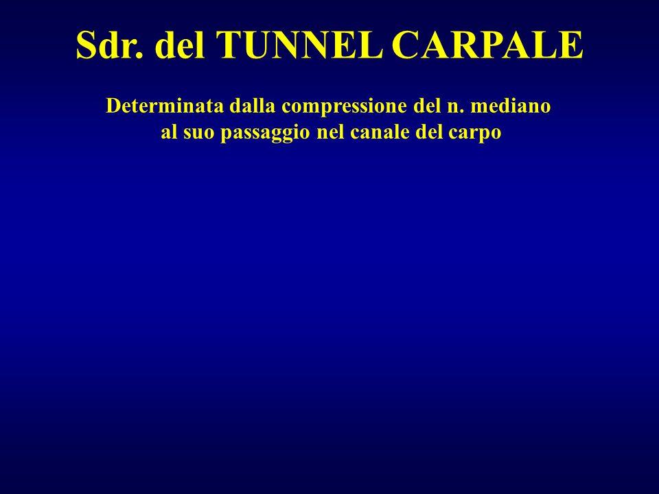 Sdr. del TUNNEL CARPALE Determinata dalla compressione del n. mediano