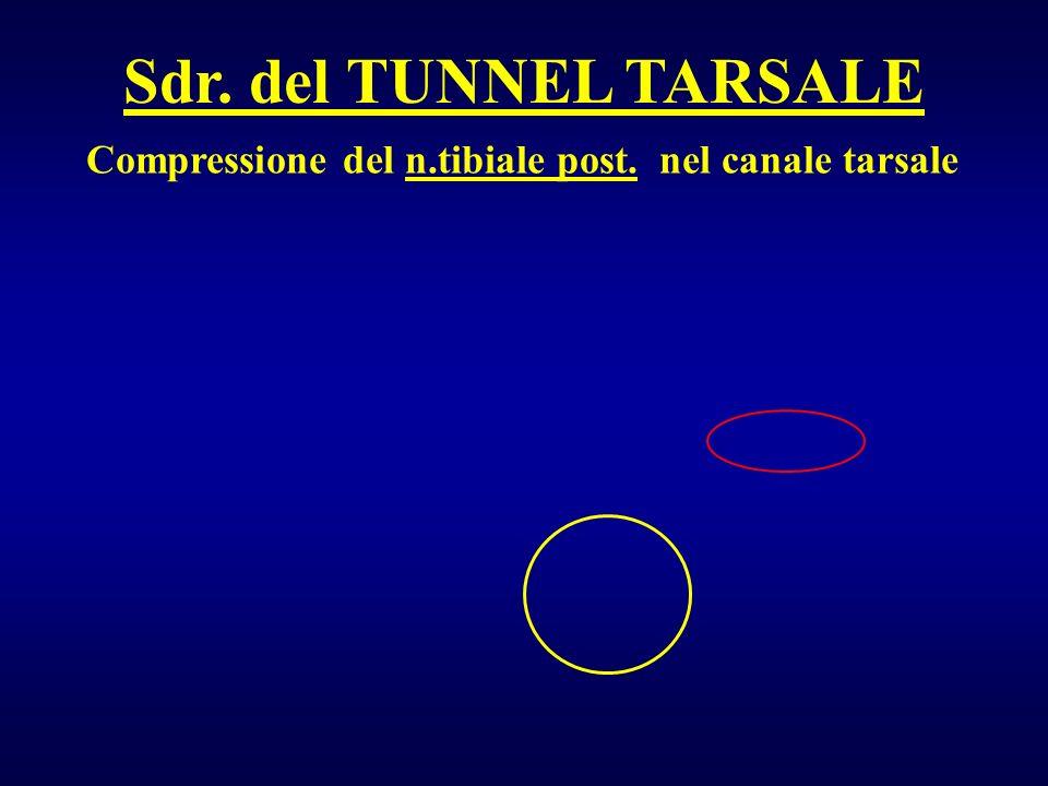 Compressione del n.tibiale post. nel canale tarsale