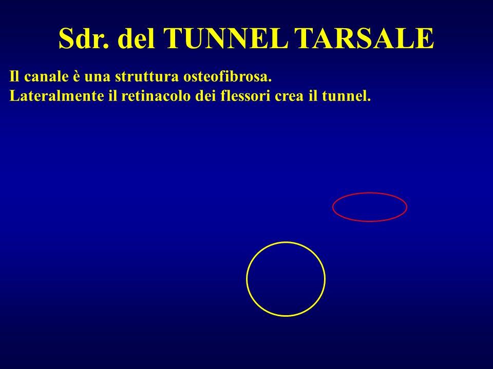 Sdr. del TUNNEL TARSALE Il canale è una struttura osteofibrosa.