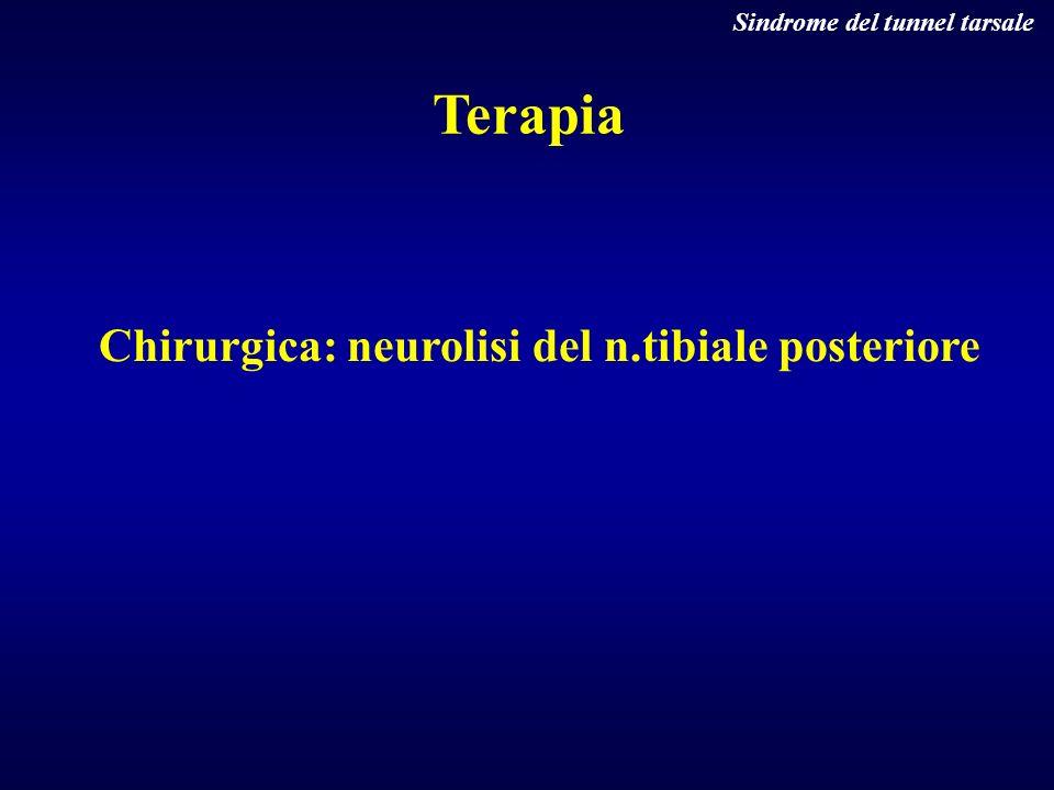 Terapia Chirurgica: neurolisi del n.tibiale posteriore