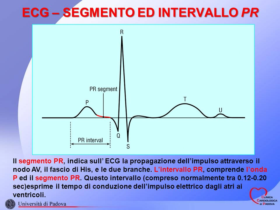 ECG – SEGMENTO ED INTERVALLO PR