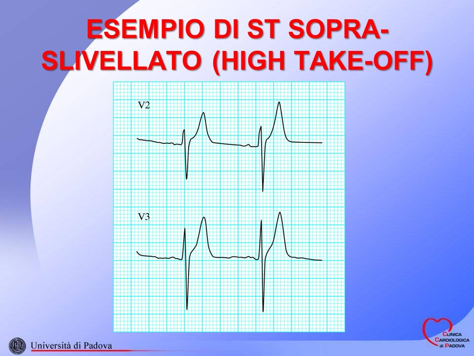 ESEMPIO DI ST SOPRA-SLIVELLATO (HIGH TAKE-OFF)
