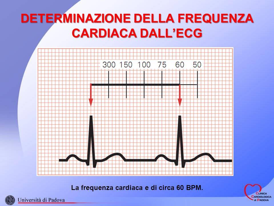 DETERMINAZIONE DELLA FREQUENZA CARDIACA DALL'ECG
