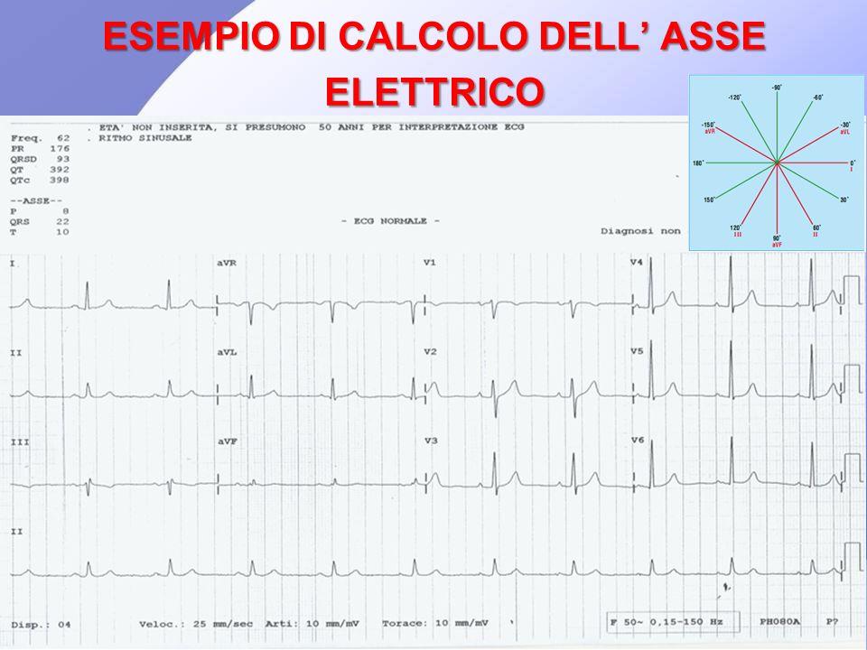 ESEMPIO DI CALCOLO DELL' ASSE ELETTRICO