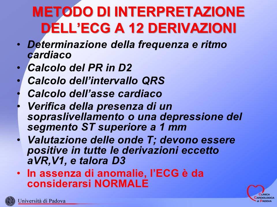 METODO DI INTERPRETAZIONE DELL'ECG A 12 DERIVAZIONI