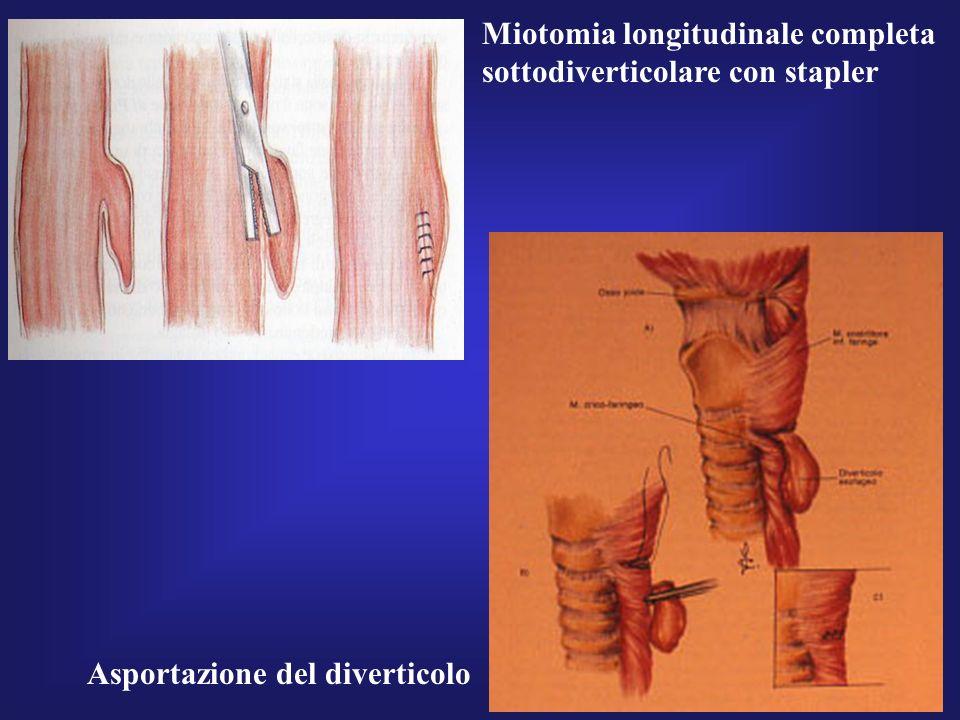 Miotomia longitudinale completa sottodiverticolare con stapler