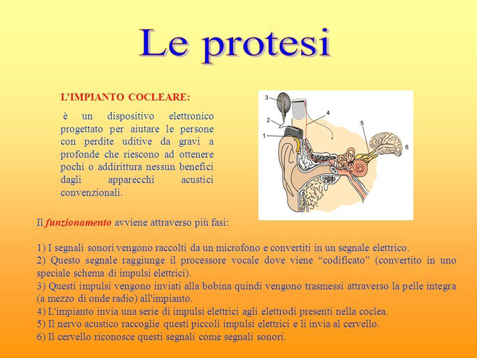 Le protesi L'IMPIANTO COCLEARE: