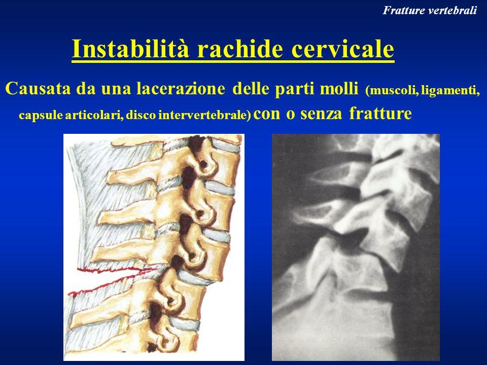 Instabilità rachide cervicale