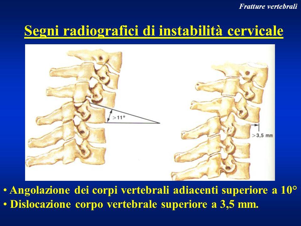 Segni radiografici di instabilità cervicale