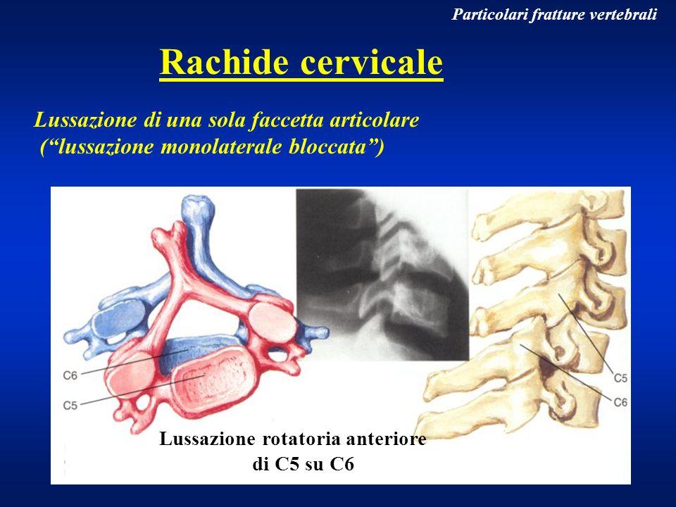 Rachide cervicale Lussazione di una sola faccetta articolare