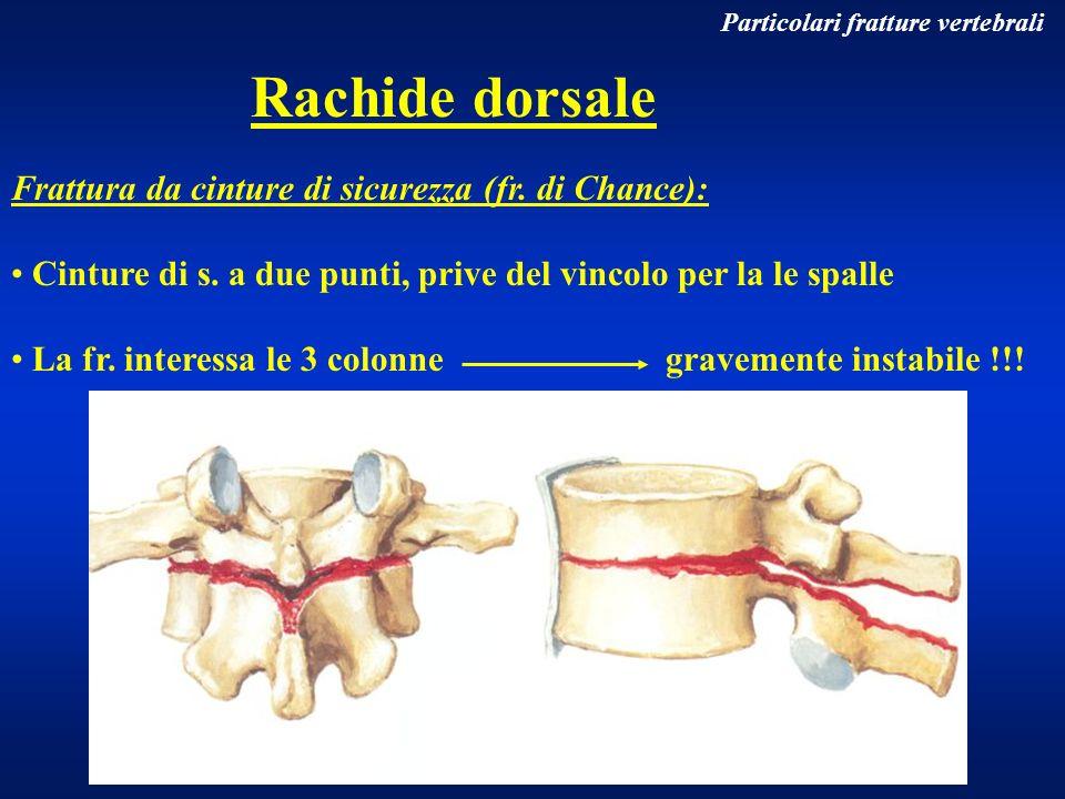 Rachide dorsale Frattura da cinture di sicurezza (fr. di Chance):