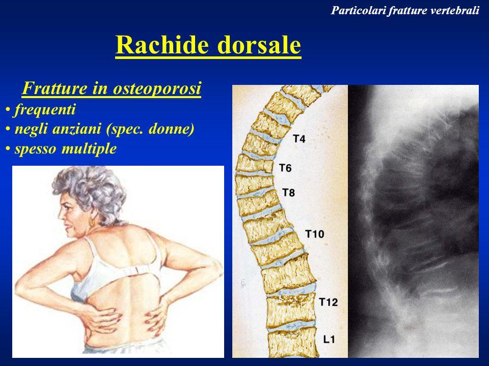 Rachide dorsale Fratture in osteoporosi frequenti