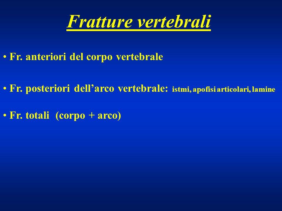 Fratture vertebrali Fr. anteriori del corpo vertebrale