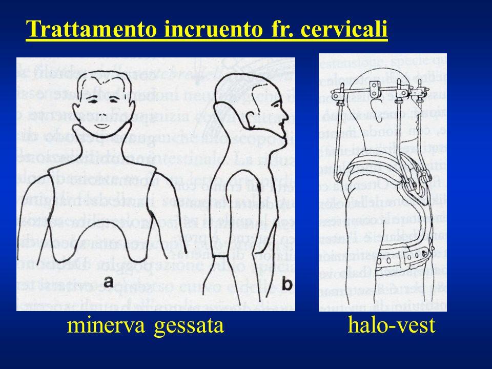 Trattamento incruento fr. cervicali
