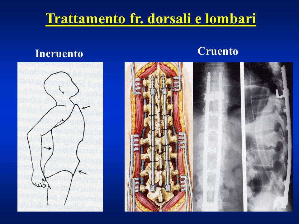 Trattamento fr. dorsali e lombari