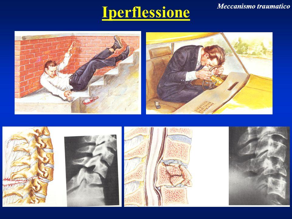 Iperflessione Meccanismo traumatico