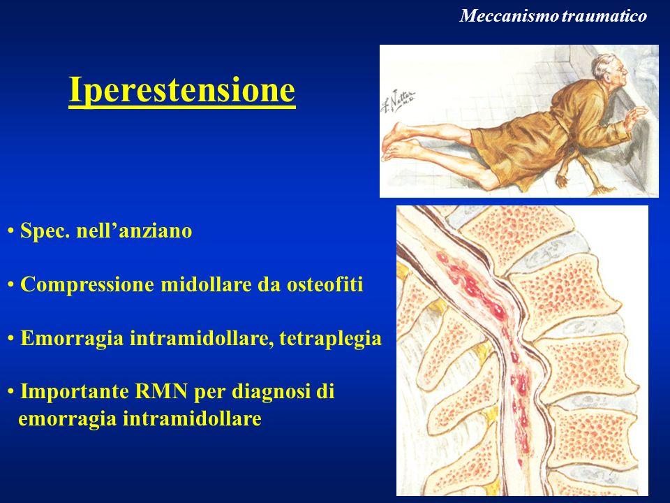 Iperestensione Spec. nell'anziano Compressione midollare da osteofiti