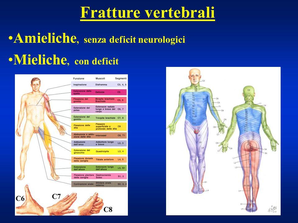 Fratture vertebrali Amieliche, senza deficit neurologici