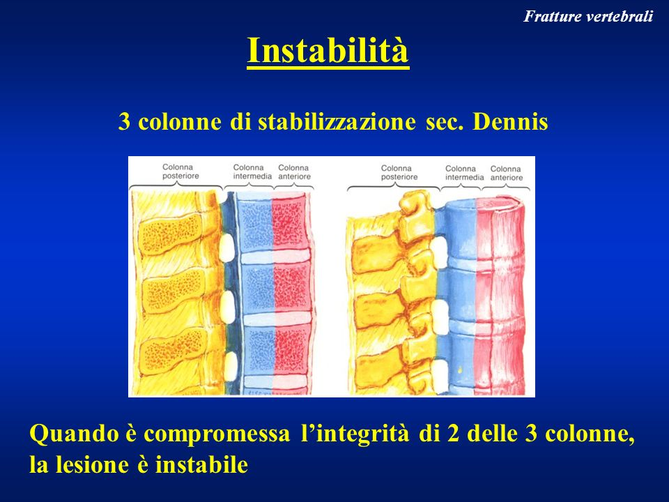 Instabilità 3 colonne di stabilizzazione sec. Dennis