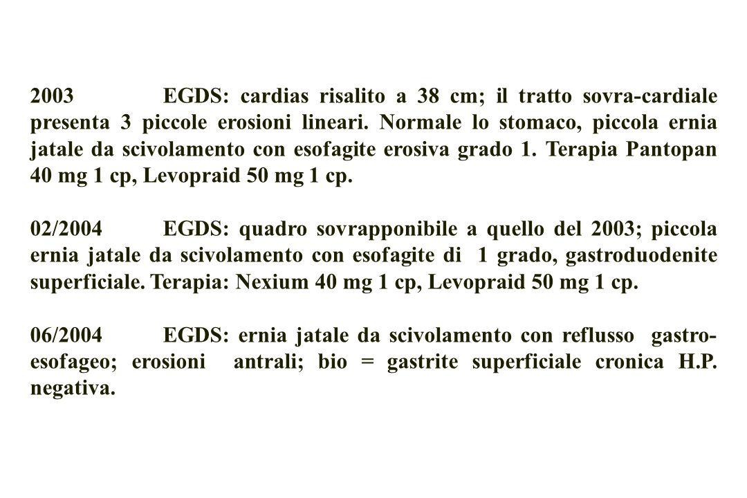 2003 EGDS: cardias risalito a 38 cm; il tratto sovra-cardiale presenta 3 piccole erosioni lineari. Normale lo stomaco, piccola ernia jatale da scivolamento con esofagite erosiva grado 1. Terapia Pantopan 40 mg 1 cp, Levopraid 50 mg 1 cp.