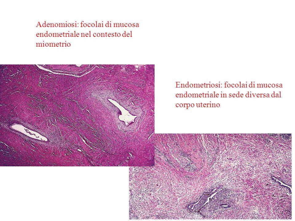 Adenomiosi: focolai di mucosa endometriale nel contesto del miometrio