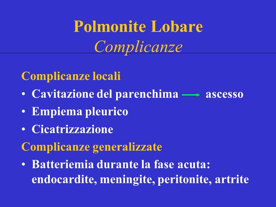 Polmonite Lobare Complicanze