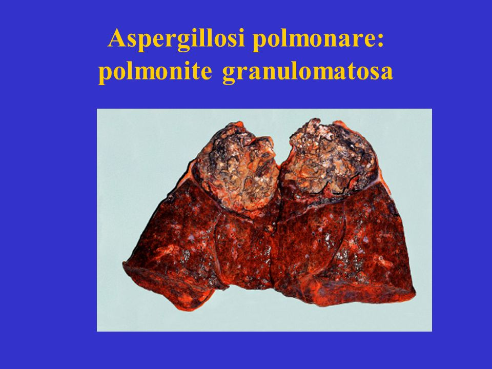 Aspergillosi polmonare: polmonite granulomatosa