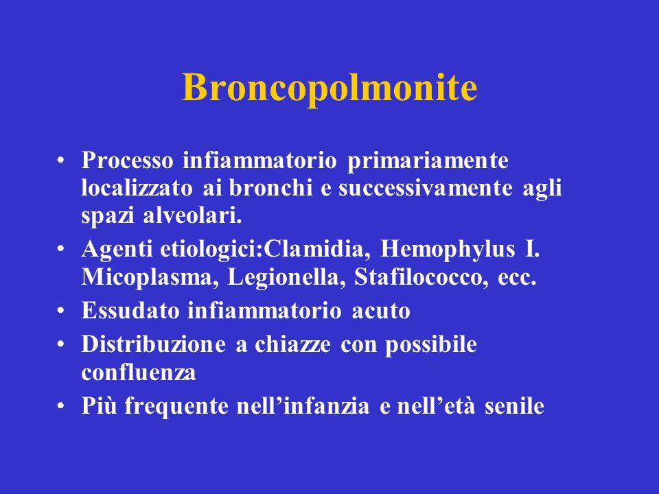 Broncopolmonite Processo infiammatorio primariamente localizzato ai bronchi e successivamente agli spazi alveolari.