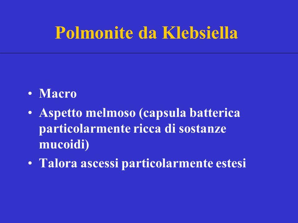 Polmonite da Klebsiella