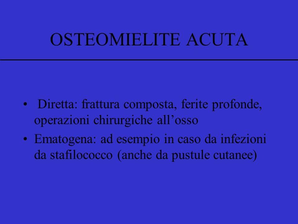 OSTEOMIELITE ACUTA Infezione dell'osso