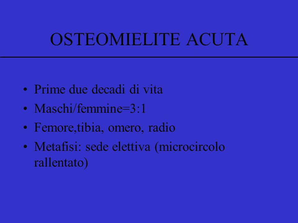 OSTEOMIELITE ACUTA Prime due decadi di vita Maschi/femmine=3:1