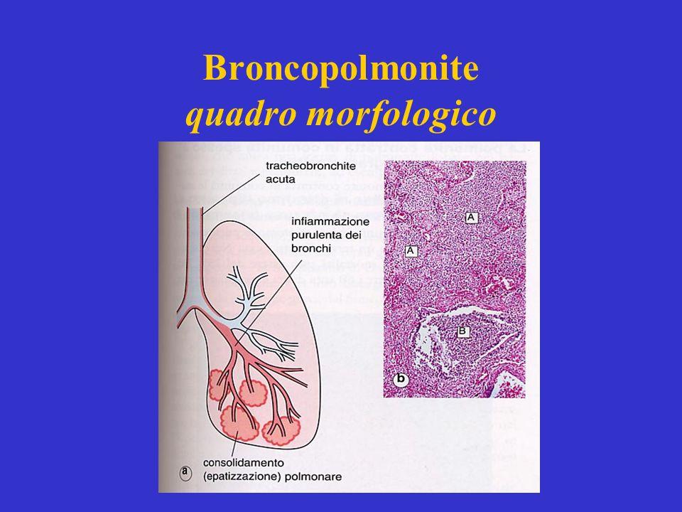 Broncopolmonite quadro morfologico