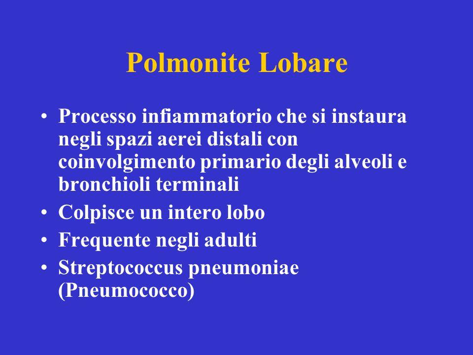 Polmonite Lobare Processo infiammatorio che si instaura negli spazi aerei distali con coinvolgimento primario degli alveoli e bronchioli terminali.