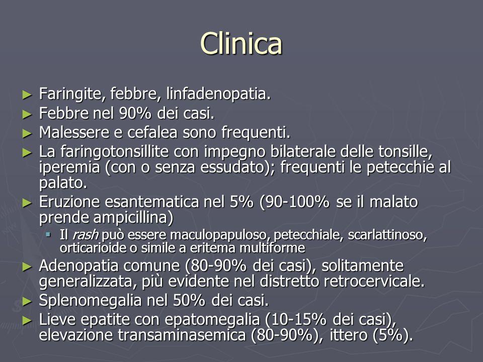 Clinica Faringite, febbre, linfadenopatia. Febbre nel 90% dei casi.