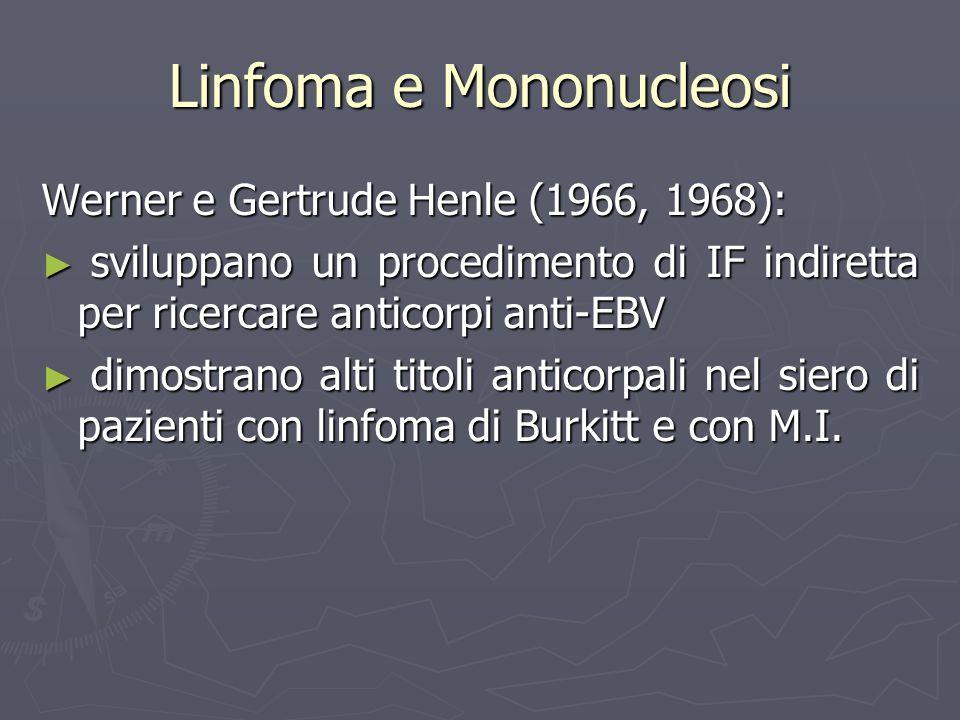 Linfoma e Mononucleosi