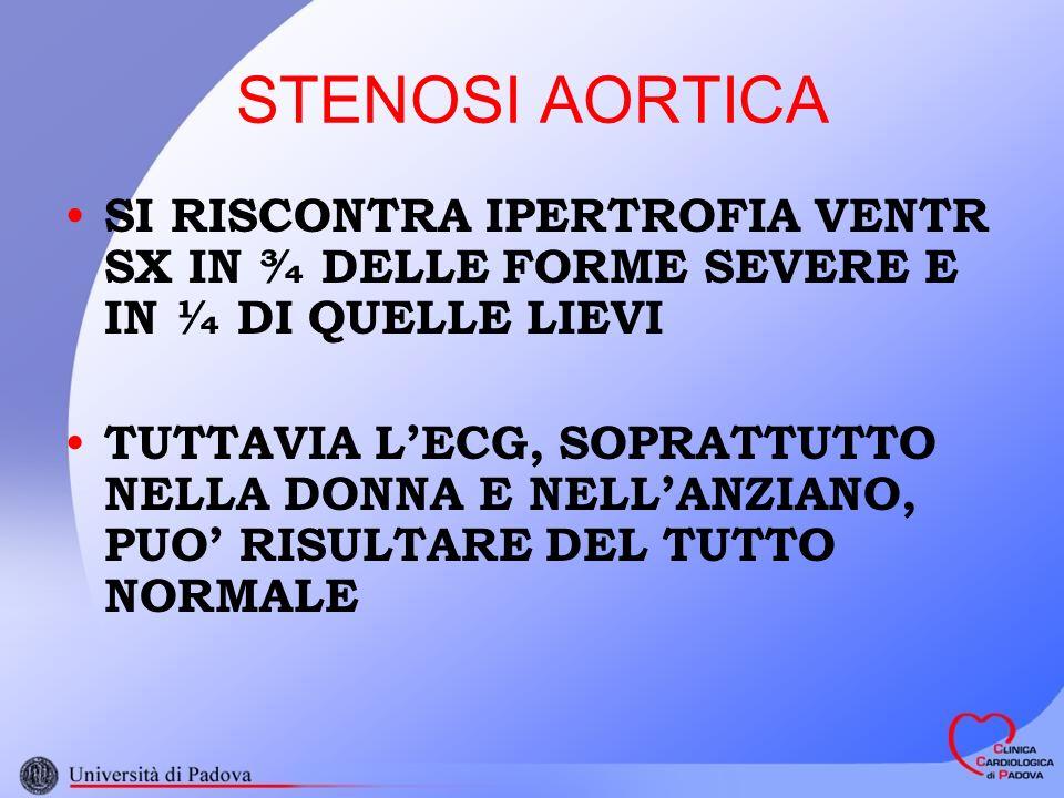 STENOSI AORTICA SI RISCONTRA IPERTROFIA VENTR SX IN ¾ DELLE FORME SEVERE E IN ¼ DI QUELLE LIEVI.