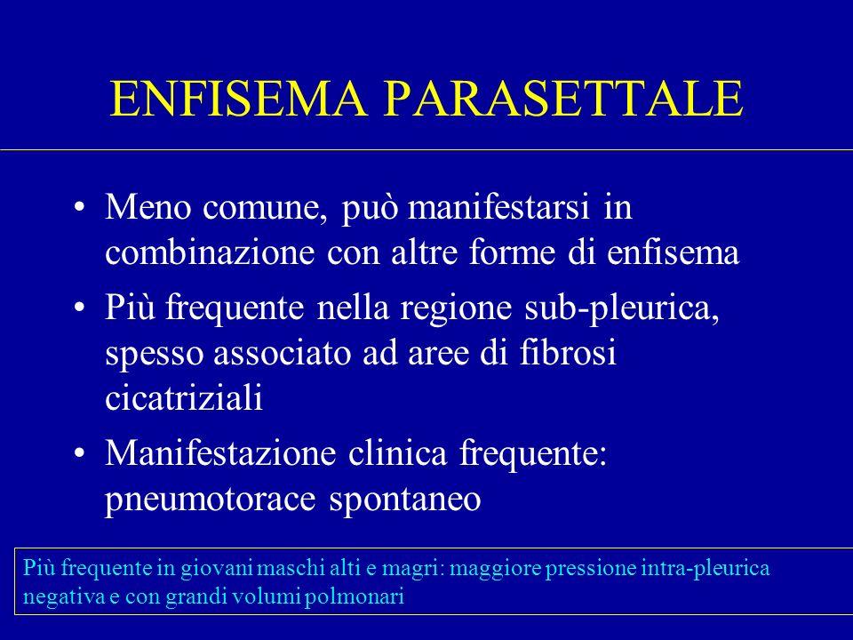 ENFISEMA PARASETTALE Meno comune, può manifestarsi in combinazione con altre forme di enfisema.