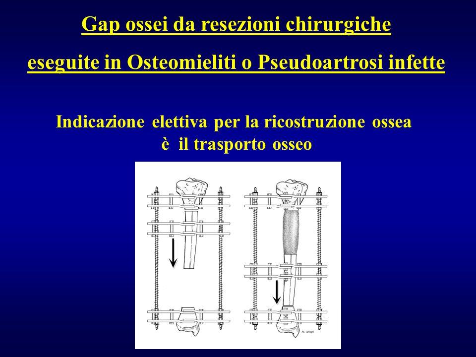 Gap ossei da resezioni chirurgiche