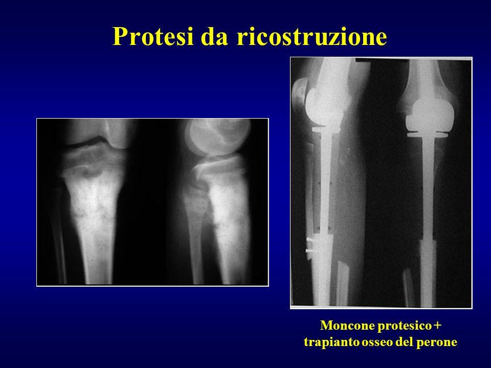 Protesi da ricostruzione