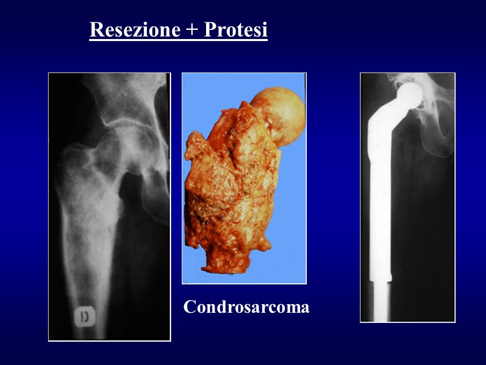 Resezione + Protesi Condrosarcoma