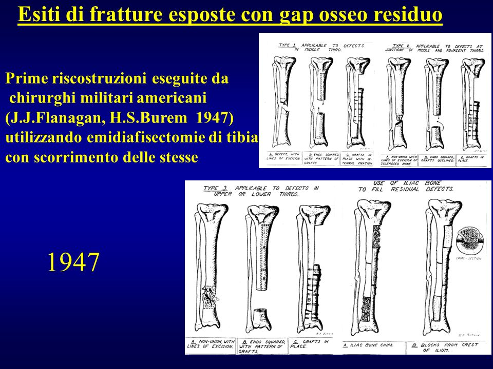 1947 Esiti di fratture esposte con gap osseo residuo